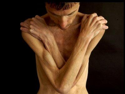Men_anorexia